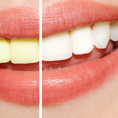 Qualities of The Best Cosmetic Dentists